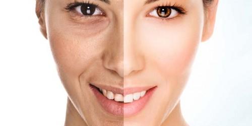 Facial skin biostimulation (PRP)