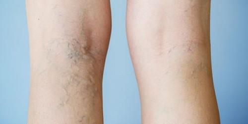 varicose-veins2--centro-medico-torrevieja