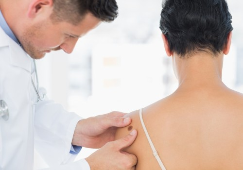 dermatology-centro-medico-torrevieja